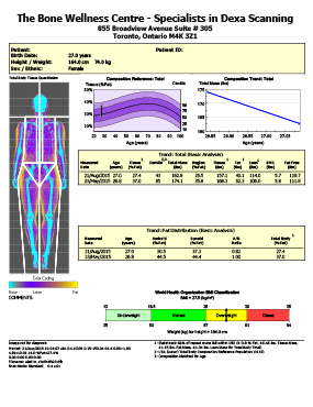 Female DEXA Body Composition
