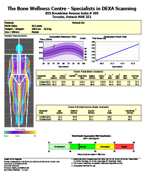 Skinny Fat DEXA Body Composition