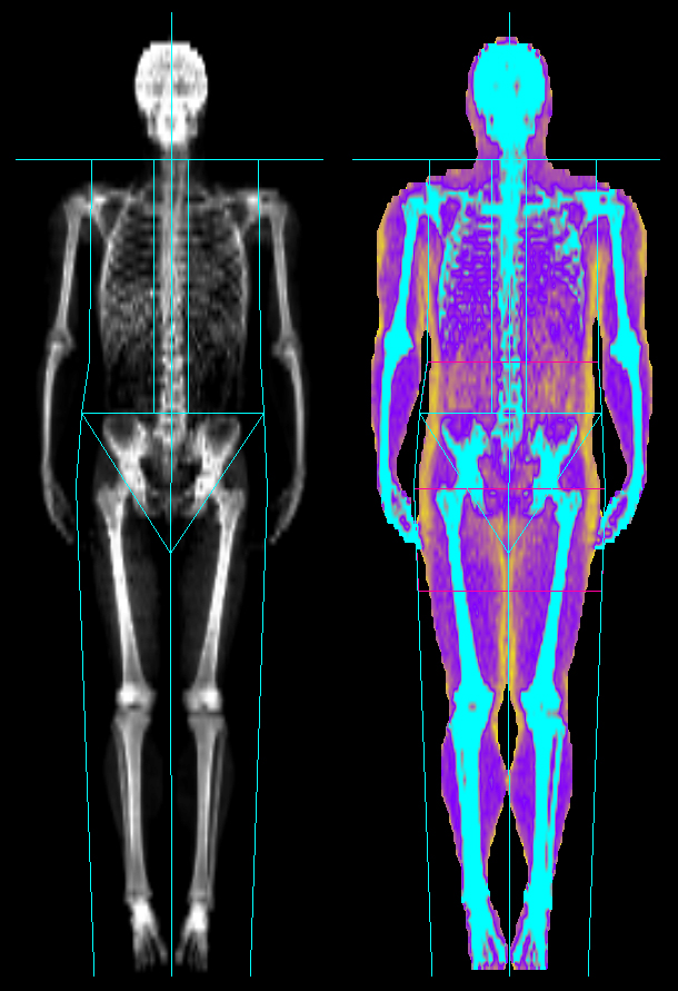 //www.bonewellness.com/wp-content/uploads/2017/06/Male-DEXA-SCAN-2017.jpg