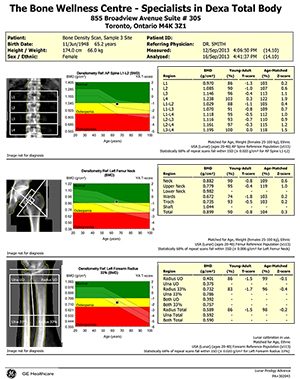 Bone-Density-(BMD)-SampleScan