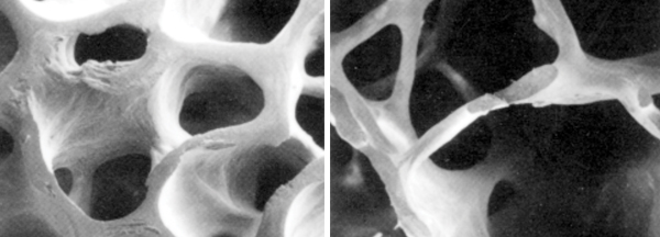 osteoporotic_bone